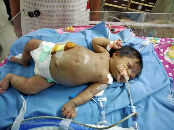 Baby of Sharadha Gowthaman needs your help to survive