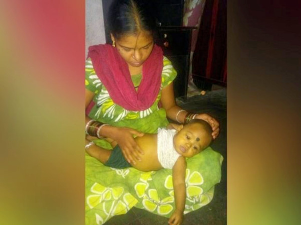 Help Required for Urgent Liver Transplantation For 6 months Old Baby