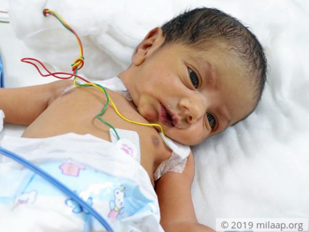 Help Baby of Naziya Undergo ASO + VSD Surgery Closure
