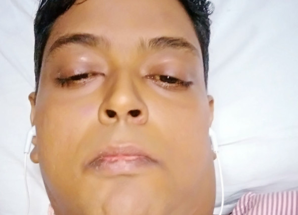 Help mandip get a new liver and a new life