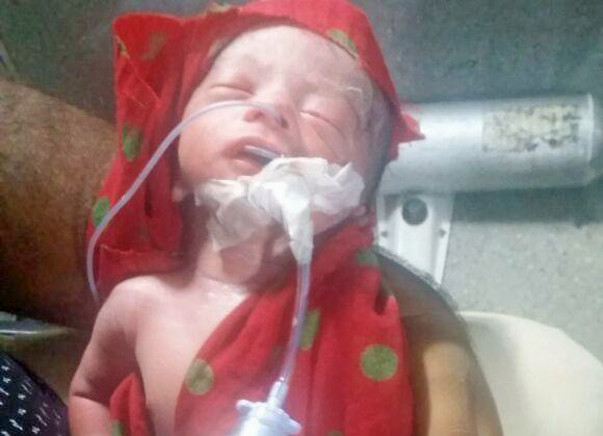 Help This Newborn For His Survival
