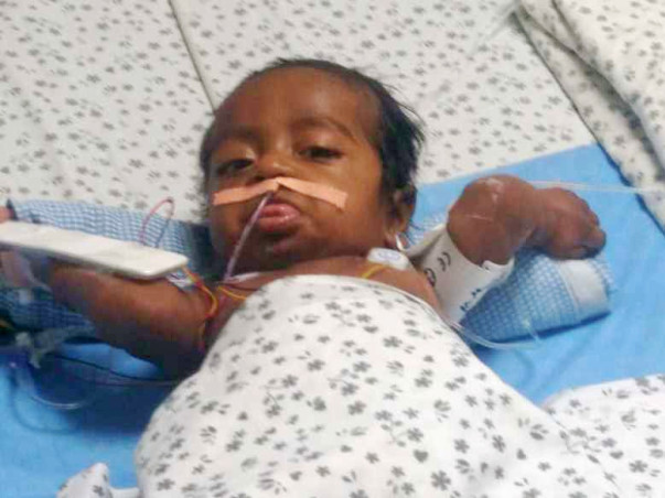Help Baby SaiChand Recover
