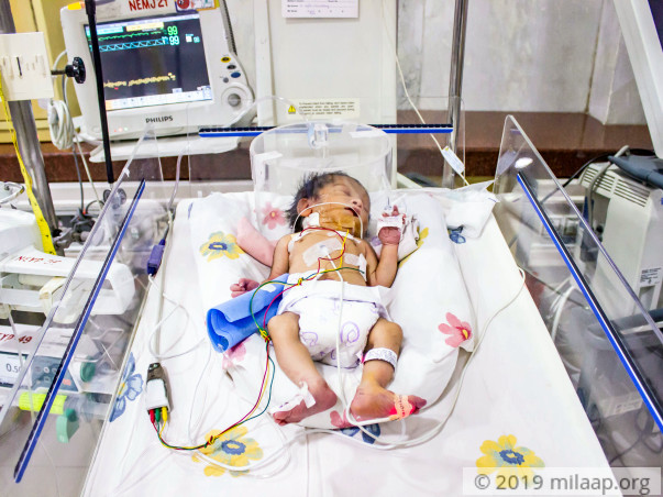 This 2-day-old's Intestines Are Pushing Into His Heart and Lungs