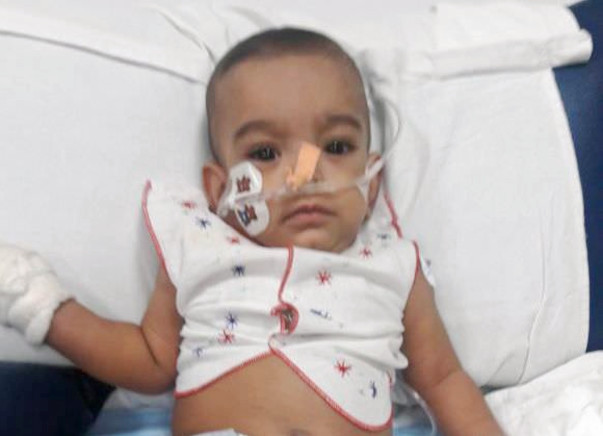 8-month-old Bhavya Is In Respiratory Distress And Needs Your Help