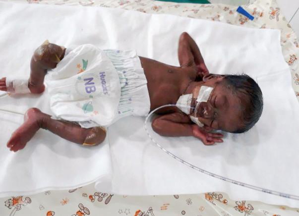 Help Twins of Amudha Get Ventilator Support