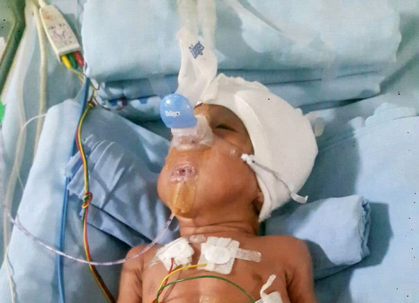Save Baby Mokshith Who Was Born At 5 Months