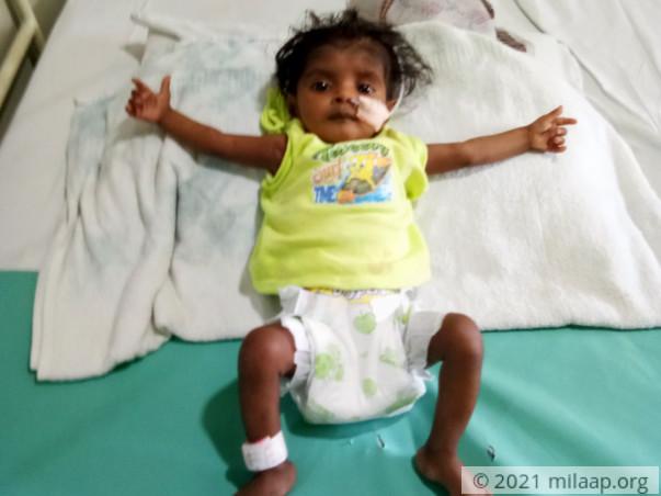 Help baby Monasree fight a severe heart disease