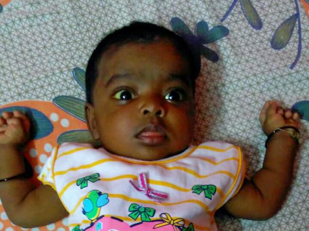 Help 6-Month-Old Baby Marwah Undergo An Urgent Liver Transplant