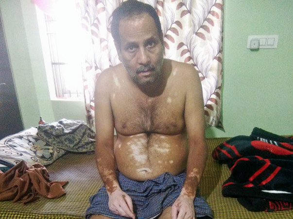 Support Rajesh Singh Thakur Recover From Mental Retardation & Vitiligo
