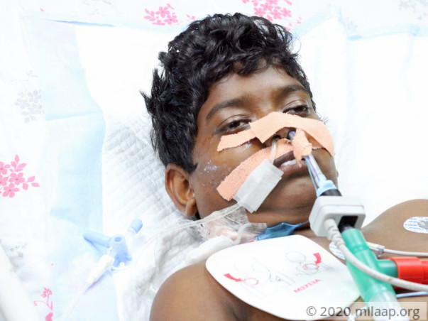 Young Boy Lost His Voice Due To Severe Infection, Needs Urgent Help