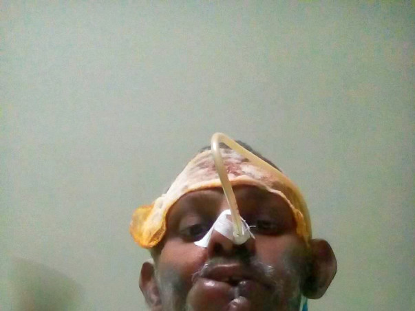 Help Venkat Fight Mouth Cancer