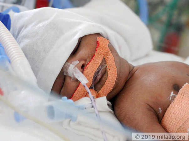 Help Baby of valli to fight disease