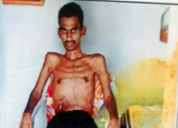Help Mr Narasimha to fight back. He met with tragic accident lost limb