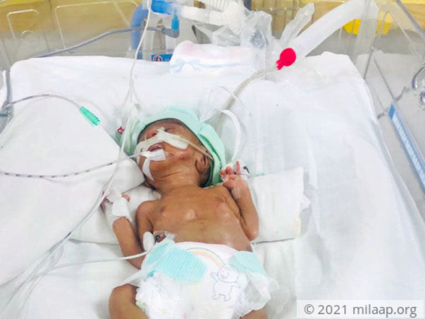baby of manju devi neonatal sepsis