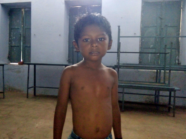 Help 5-year-old-Annamalai undergo heart surgery