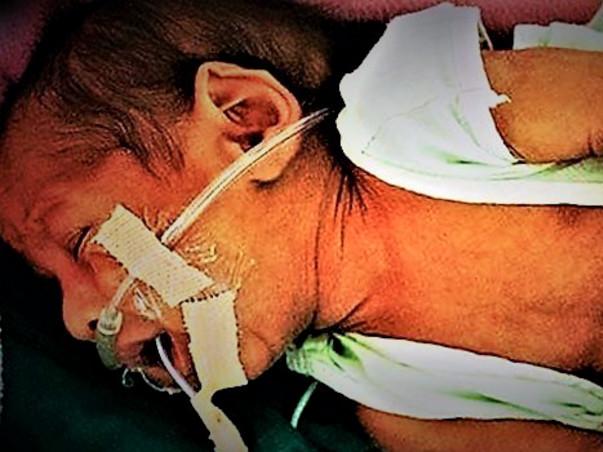 Help 15 Days old Baby Undergo Bone Marrow Transplant