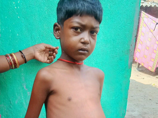 Help the 7 year old kid Krishna Behera to go for Liver Transplantation. A single penny may help him to live his life.