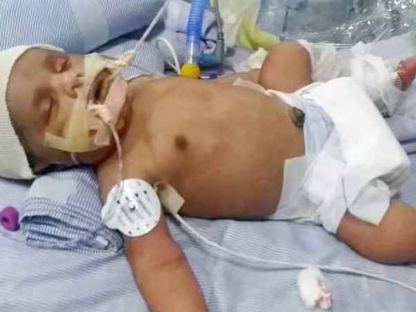 Help Me To Save My Baby. He Needs To Undergo Liver Transplant.