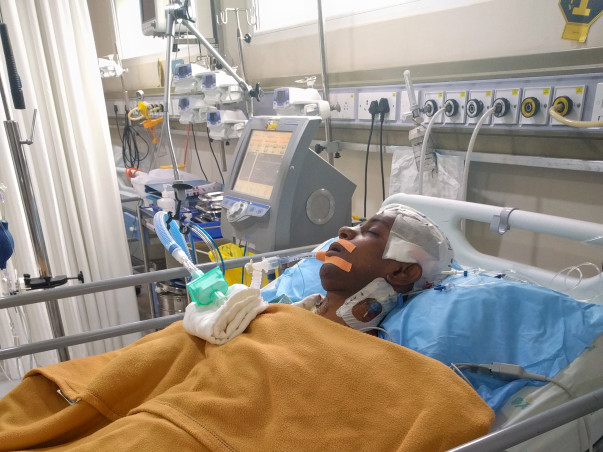 My only brother needs help- Kidney Failure & now brain bleed