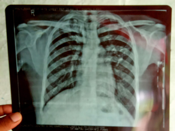 Help Vipin For His Treatment And Recover From TB