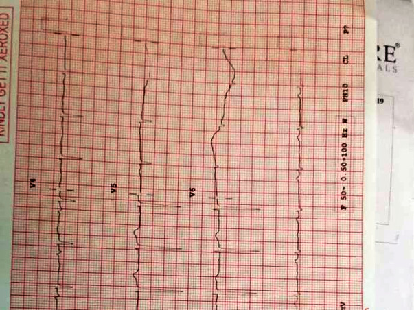 Help My Father To Recover From  Ischemic  Heart Disease