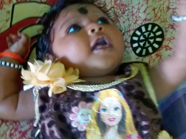 """Baby suffering with """"Microcephaly """""""