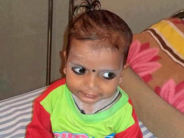 Help 2-Year-Old Viraj Fight Against Blood Cancer