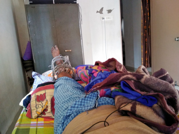 Help Chandan for Surgery,post surgery and to get a Prosthetic Leg