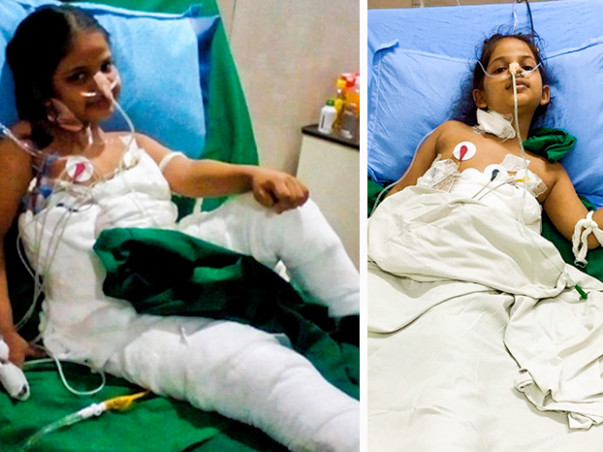 Help Simran Recover From Severe Burns