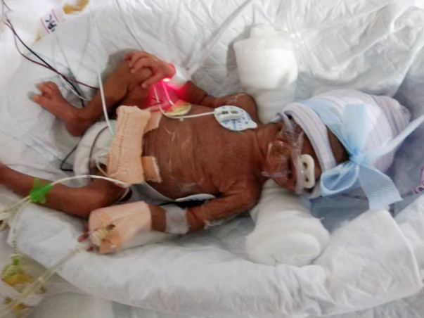 Help PrematureTwins who are now in the ICU fighting for their lives