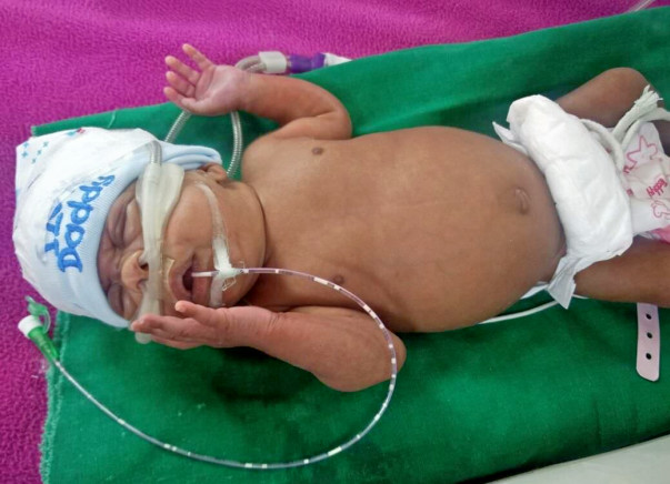 Prematurely born baby fights for her life in the ICU