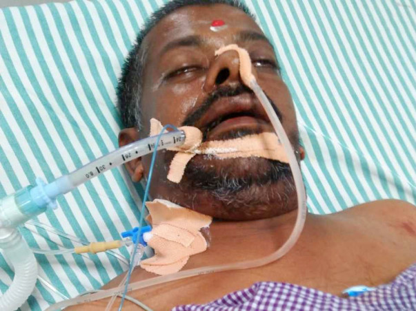 Support Srinivasareaddy Recover From Organs Failure And From Paralysis