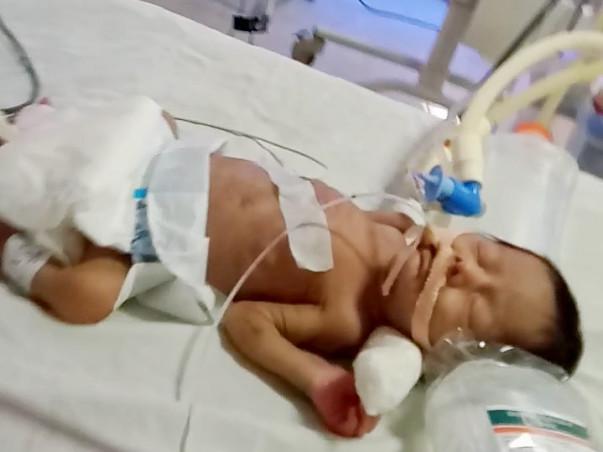 Help Baby Shafiuddin Fight Premature Birth Complications