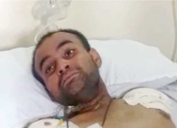 Help Muneer (Lost his arms - amputated) Electrocuted