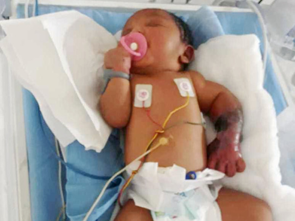 Help This New Born Whose Left Limb Is Infected By Gangrene Since Birth