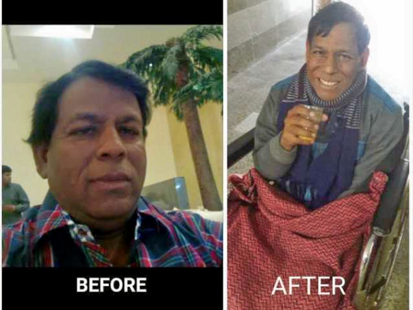 My Father needs URGENT LIVER TRANSPLANT for survival which costs 20Lac
