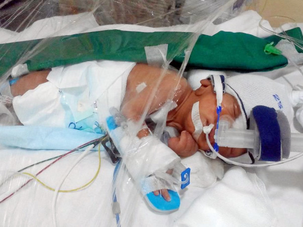 Help Punit's Pre-Term Baby