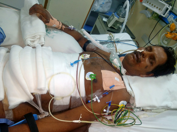 Help Balamurugan To Fight Severe Acute Pancreatitis