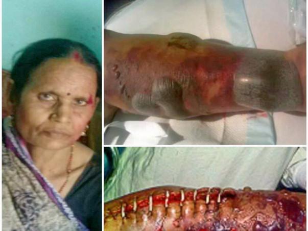 Help 55 -Year-Old Asha Devi Fight Against Necrotizing Fasciitis