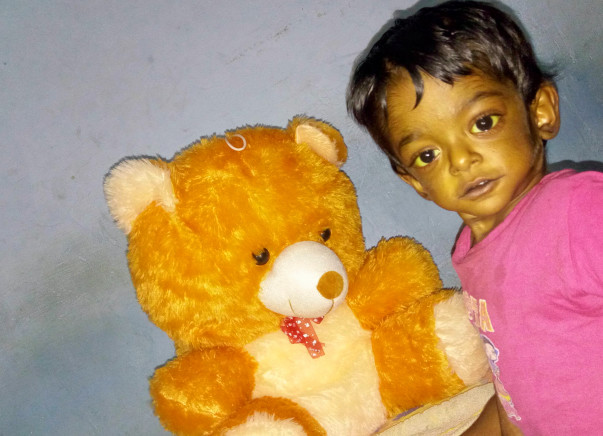 LIVER TRANSPLANT for my 2yr old son Kapil Abhinav