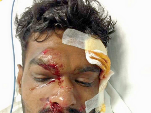 Help Santhosh to recover