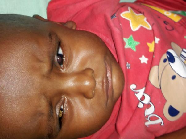 Help 10 months old  fight Retino Blastoma Eye cancer