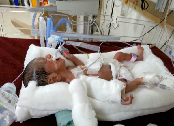 1-month-old Baby is Critically Ill & On Ventilator Needs Your Help