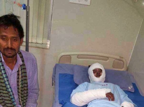Help Poor Burn Victims from Jharkhand