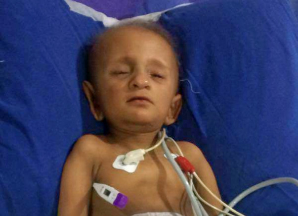 My 2 year 0ld son suffering from kidney cancer