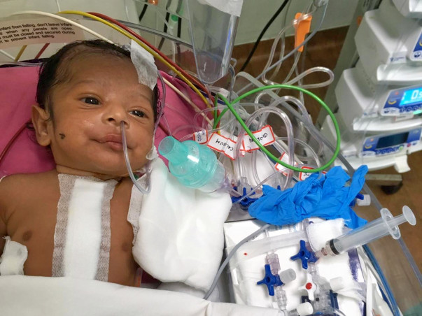 Help  1-Month-Old Baby Fight Heart Disease