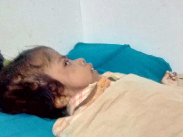 Help Daniska Recover From Hydrocephalus