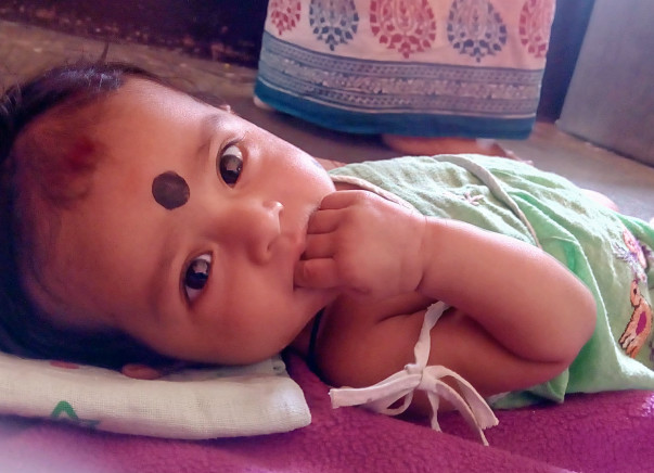 Help little Dimple for her treatment