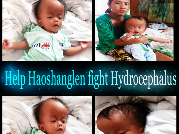 Help Haoshanglen  fight Hydrocephalus