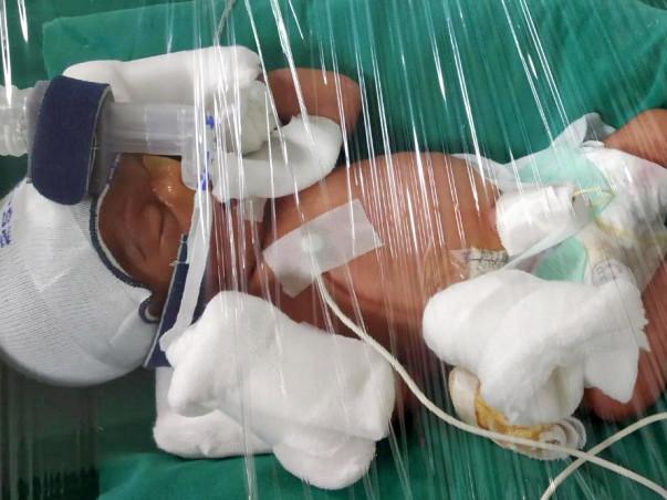 Open Heart Surgery. Twin Babies are born Preterm , Please Help